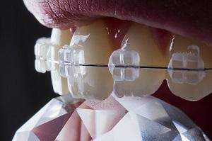 Aparat dentar safir invizibil