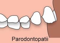 Parodontopatii