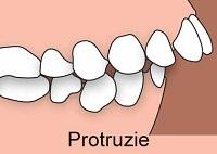 Protruzie dentara